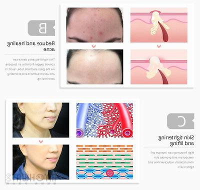 Portable High Frequency Violet Removal